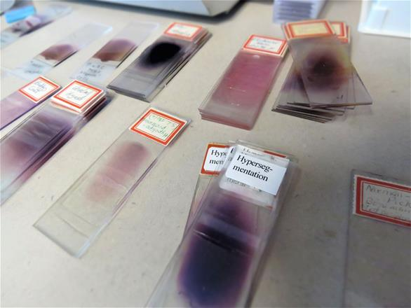 Blood Sample Slides